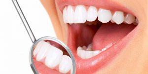 Solusi Perawatan Gigi Di Niti Dentist Cempaka Putih